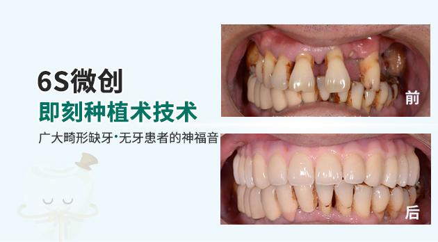 牙卫士6s微创