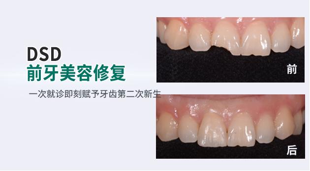 牙卫士DSD前牙美容修复