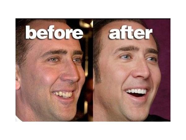成年人能不能做牙齿矫正?权威解答都在这里了!