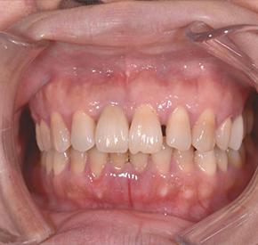 牙卫士坚固耐用