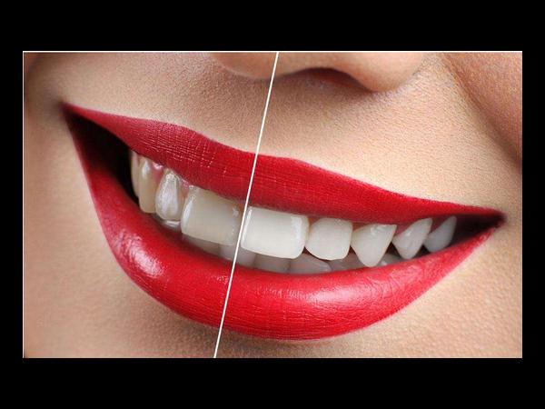 """牙卫士口腔牙齿美白让您摆脱""""黄牙妹""""!"""