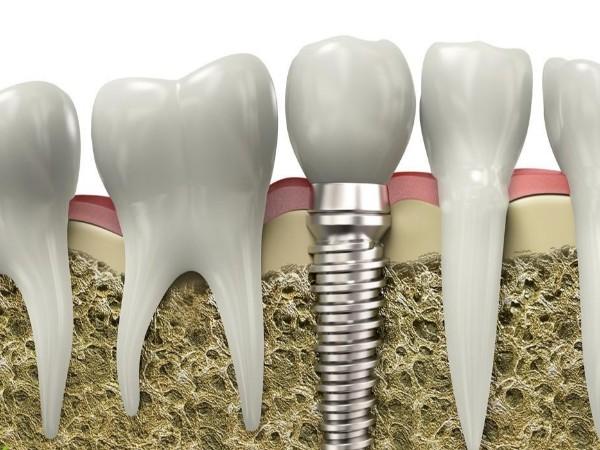 种植牙耐不耐用?科学事实告诉您!