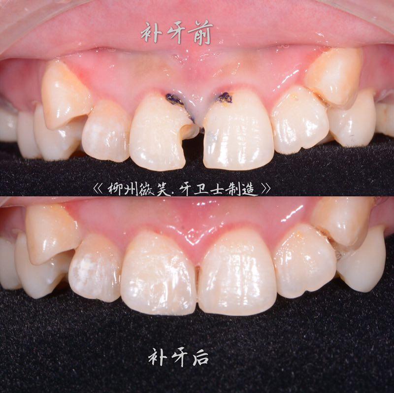 牙卫士牙齿修复